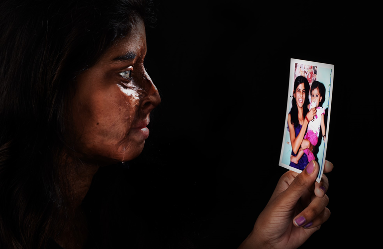 acid attack niraj gera photography