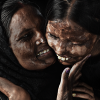 Meet The Man Behind These Powerful Images Of Acid Attack Survivors, Winning Hearts On The Internet