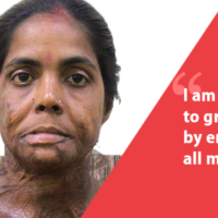 Moyna Pramanik: Does An Acid Attack And A Scarred Face Make Me Unladylike In The Society?
