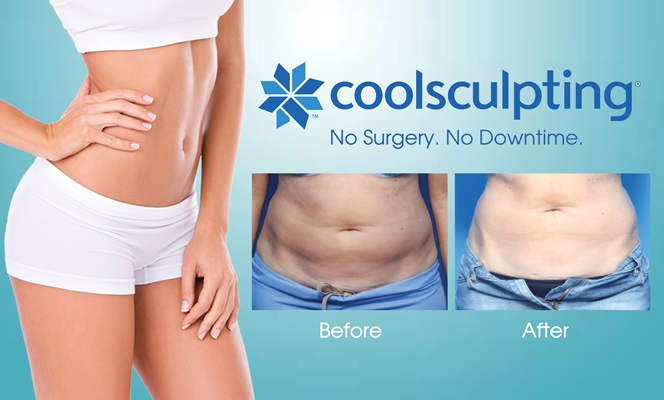 Coolsculpting- Getting Your Hourglass Figure Is Not A Dream Anymore